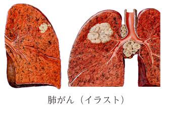 肺がんイラスト